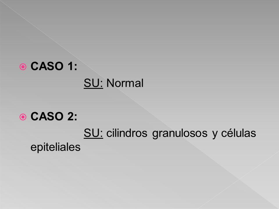 CASO 1: SU: Normal CASO 2: SU: cilindros granulosos y células epiteliales