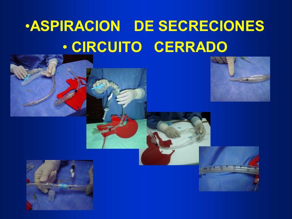 ASPIRACION DE SECRECIONES CIRCUITO CERRADO