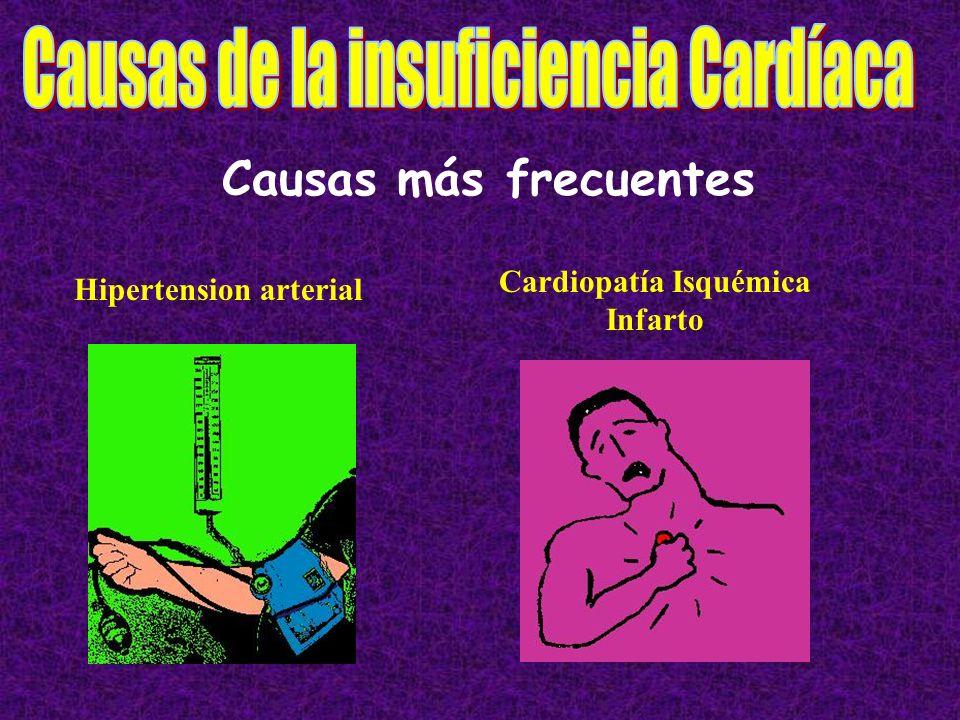 Causas más frecuentes Hipertension arterial Cardiopatía Isquémica Infarto