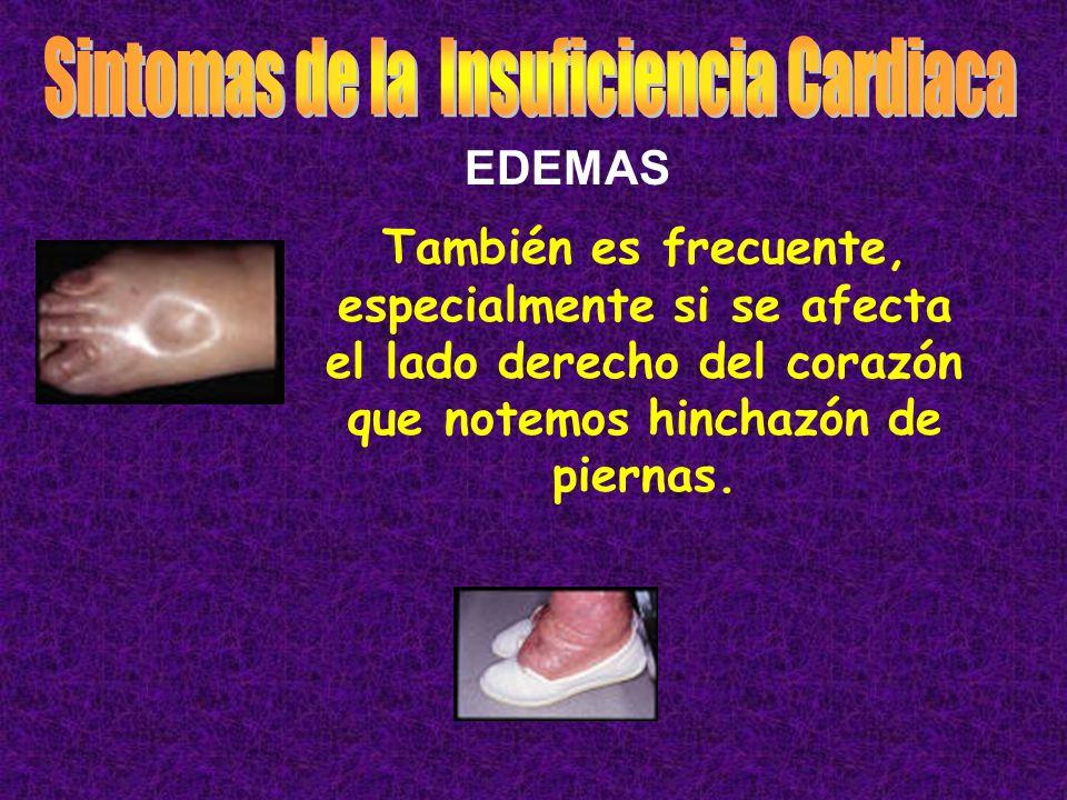 También es frecuente, especialmente si se afecta el lado derecho del corazón que notemos hinchazón de piernas. EDEMAS