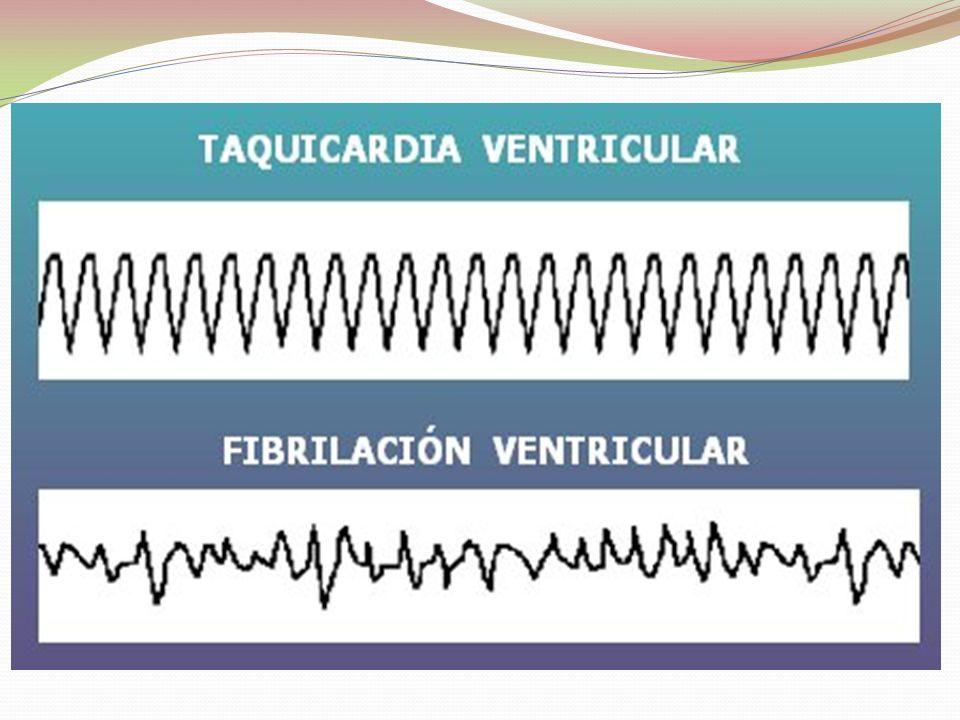 Atragantamiento Un cuerpo extraño obstruye la v.aérea produciendo compromiso ventilatorio.