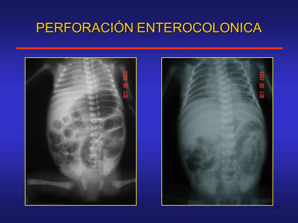 20 PERFORACIÓN ENTEROCOLONICA