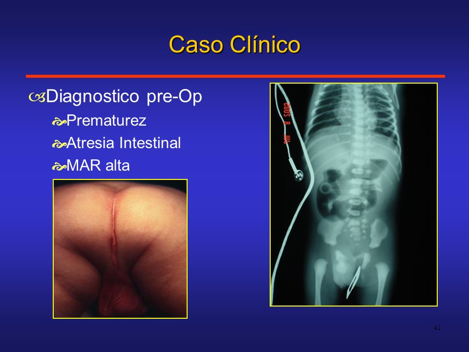 41 Caso Clínico Diagnostico pre-Op Prematurez Atresia Intestinal MAR alta