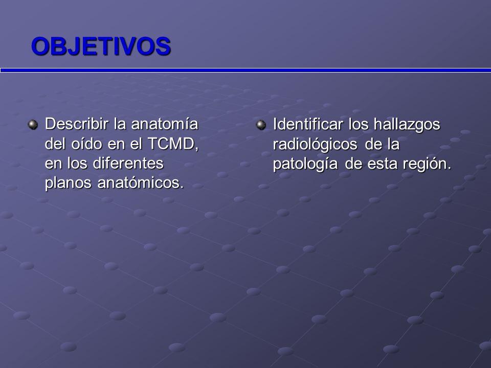EXÓSTOSIS CAE (Surfer´s ear) Neoformaciones óseas benignas, generalmente bilaterales y con base de implantación ancha.