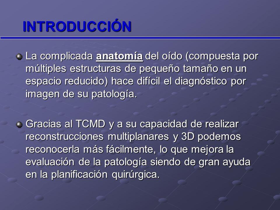 PATOLOGÍA CONGÉNITA Atresia completa del CAE derecho en planos axial y coronal. OD Atresia CAE