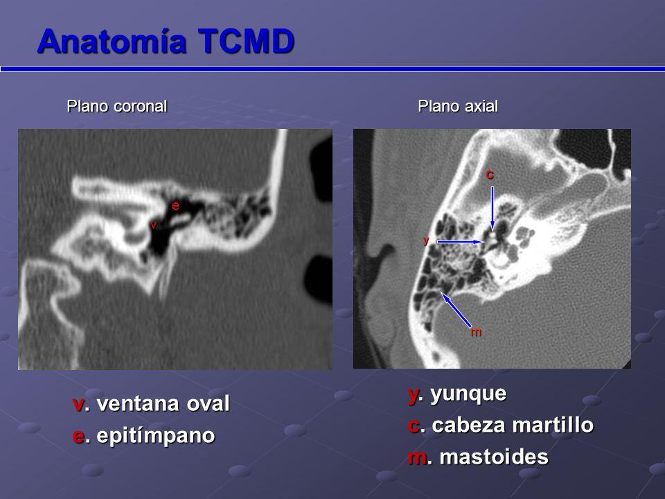Anatomía TCMD c.cabeza martillo y. yunque v. Ventana oval cae y v Plano coronal co y.