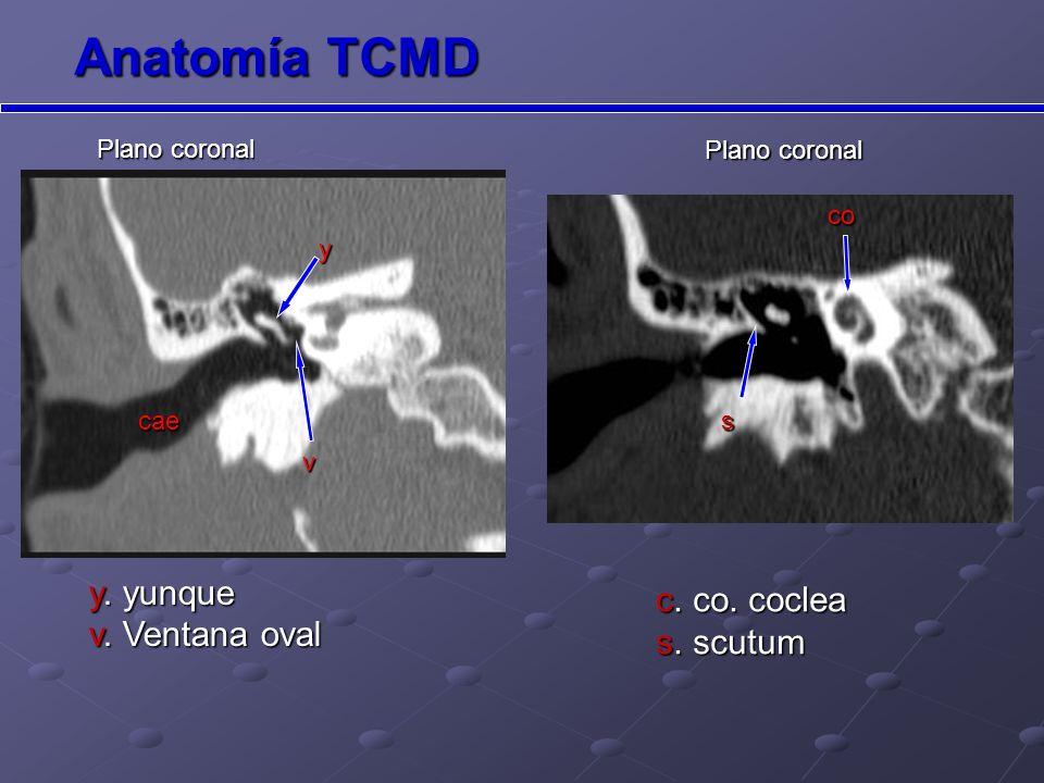 Canal del nervio facial Canal del nervio facial Plano axial Plano coronal Anatomía TCMD