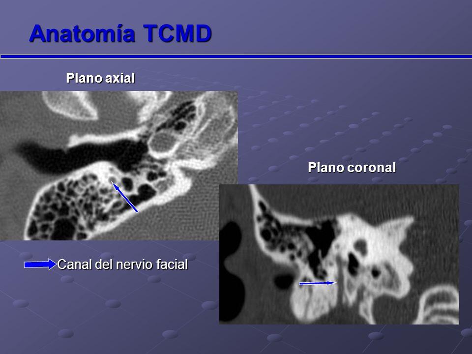 Papel del TCMD en la patología de oído El TCMD permite la reconstrucción en cualquier plano (gracias a la adquisición de datos volumétricos), pudiendo así ver con más detalle la anatomía del oído, lo que aumenta la precisión diagnóstica.