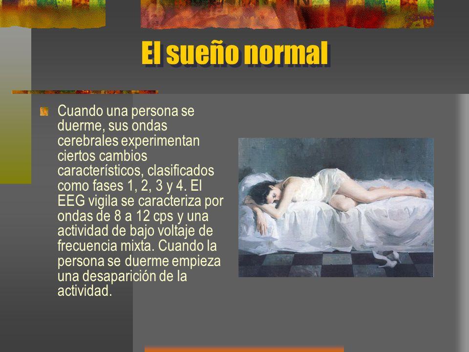 El sueño normal Cuando una persona se duerme, sus ondas cerebrales experimentan ciertos cambios característicos, clasificados como fases 1, 2, 3 y 4.