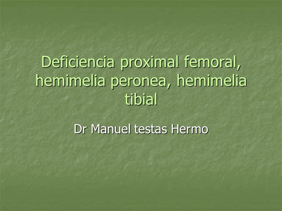 Deficiencia proximal femoral, hemimelia peronea, hemimelia tibial Dr Manuel testas Hermo