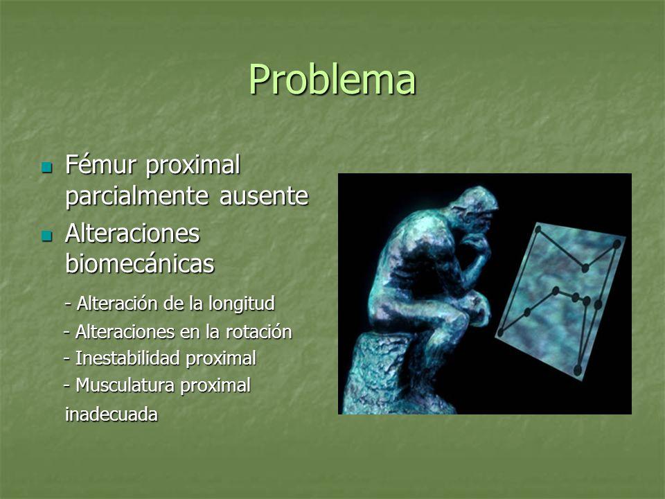 Problema Fémur proximal parcialmente ausente Fémur proximal parcialmente ausente Alteraciones biomecánicas Alteraciones biomecánicas - Alteración de l
