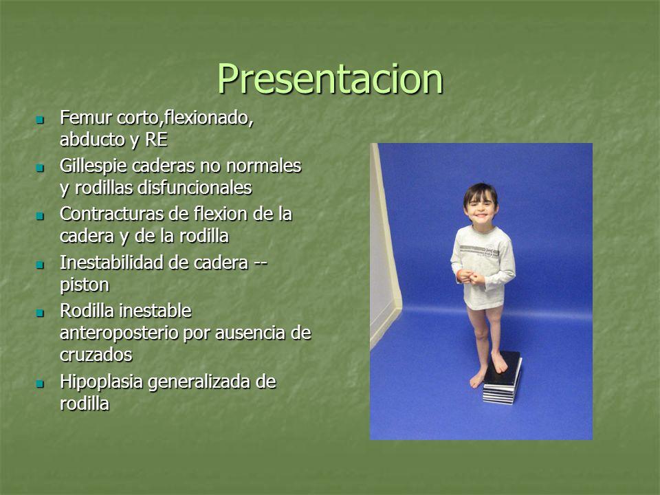 Presentacion Femur corto,flexionado, abducto y RE Femur corto,flexionado, abducto y RE Gillespie caderas no normales y rodillas disfuncionales Gillesp