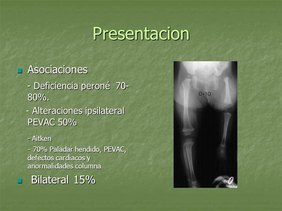 Presentacion Asociaciones Asociaciones - Deficiencia peroné 70- 80%. - Deficiencia peroné 70- 80%. - Alteraciones ipsilateral PEVAC 50% - Alteraciones