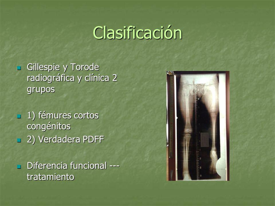 Clasificación Gillespie y Torode radiográfica y clínica 2 grupos Gillespie y Torode radiográfica y clínica 2 grupos 1) fémures cortos congénitos 1) fé