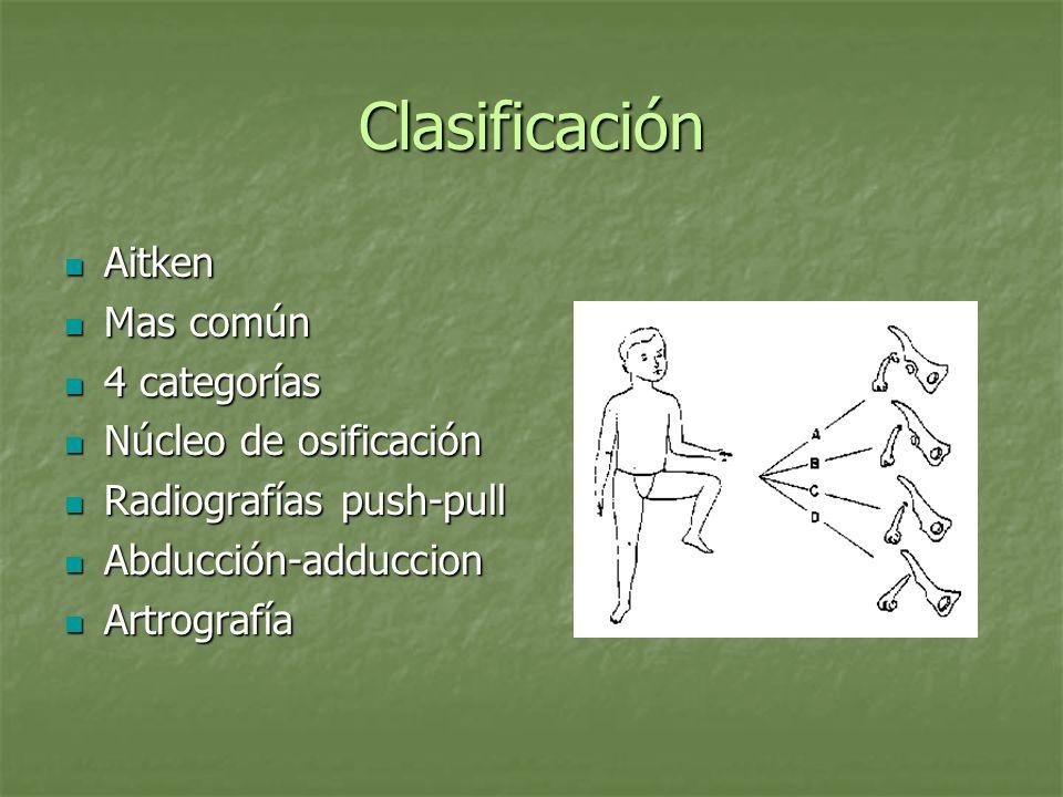 Clasificación Aitken Aitken Mas común Mas común 4 categorías 4 categorías Núcleo de osificación Núcleo de osificación Radiografías push-pull Radiograf