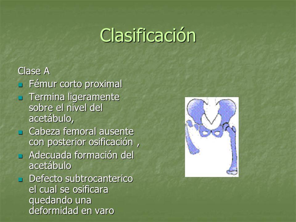 Clasificación Clase B Defecto o ausencia del fémur proximal el cual no se osificara a la madurez ósea Defecto o ausencia del fémur proximal el cual no se osificara a la madurez ósea No conexión entre la cabeza y el fémur No conexión entre la cabeza y el fémur Final del femur proximal se encuentra sobre el acetábulo Final del femur proximal se encuentra sobre el acetábulo Cabeza femoral presente con osificación retardada Cabeza femoral presente con osificación retardada
