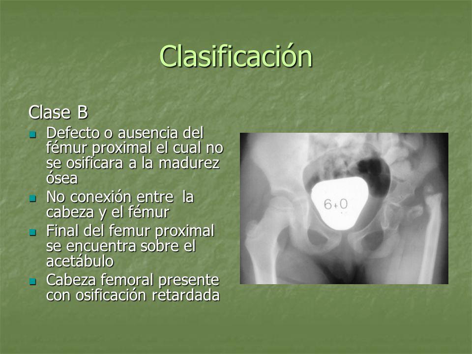 Clasificación Clase B Defecto o ausencia del fémur proximal el cual no se osificara a la madurez ósea Defecto o ausencia del fémur proximal el cual no