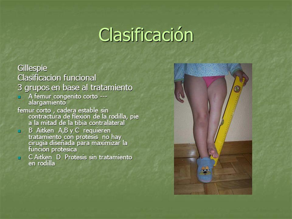 Clasificación RM vs Rx Amstutz Amstutz La valoracion radiografica tiende a sobreestimar el grado de deficiencia femoral La valoracion radiografica tiende a sobreestimar el grado de deficiencia femoral