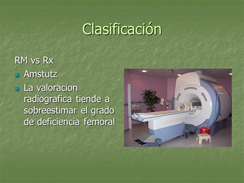 Clasificación RM vs Rx Amstutz Amstutz La valoracion radiografica tiende a sobreestimar el grado de deficiencia femoral La valoracion radiografica tie