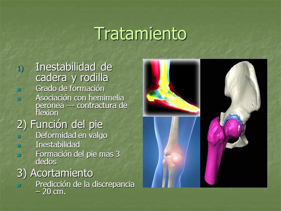Tratamiento 1) Inestabilidad de cadera y rodilla Grado de formación Grado de formación Asociación con hemimelia peronea --- contractura de flexion Aso