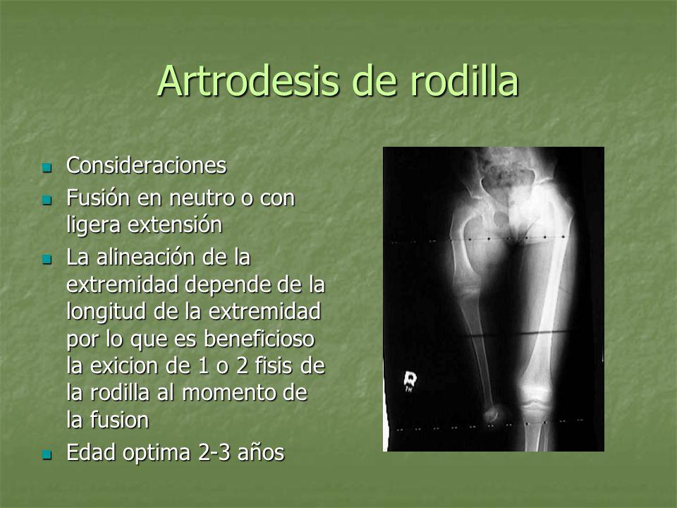 Artrodesis de rodilla Consideraciones Consideraciones Fusión en neutro o con ligera extensión Fusión en neutro o con ligera extensión La alineación de