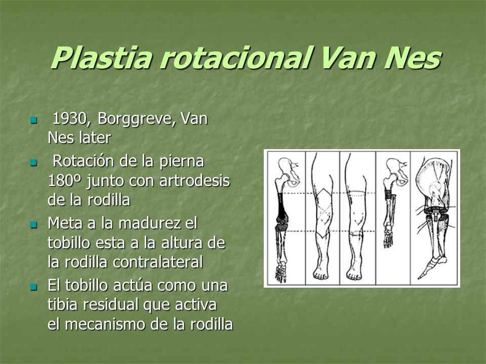 Plastia rotacional Van Nes La función del Van Nes es superior al de una prótesis sobre la rodilla (fusión mas Syme) La función del Van Nes es superior al de una prótesis sobre la rodilla (fusión mas Syme) EL consumo de oxigeno es mayor en el Van nes EL consumo de oxigeno es mayor en el Van nes Alman BA, Krajbich JI, Hubbard S.