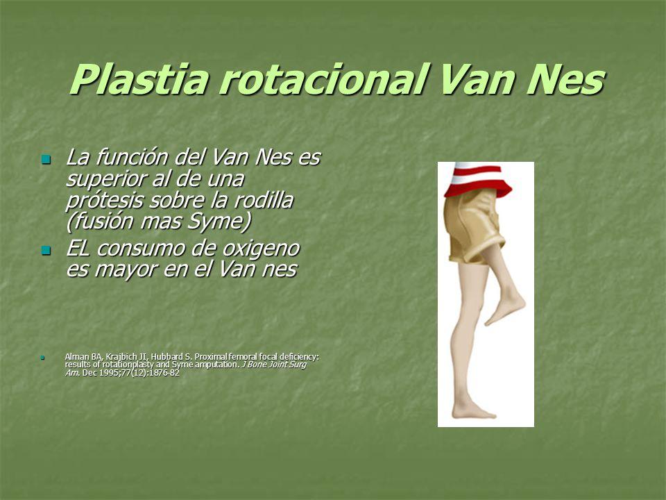 Plastia rotacional Van Nes La función del Van Nes es superior al de una prótesis sobre la rodilla (fusión mas Syme) La función del Van Nes es superior