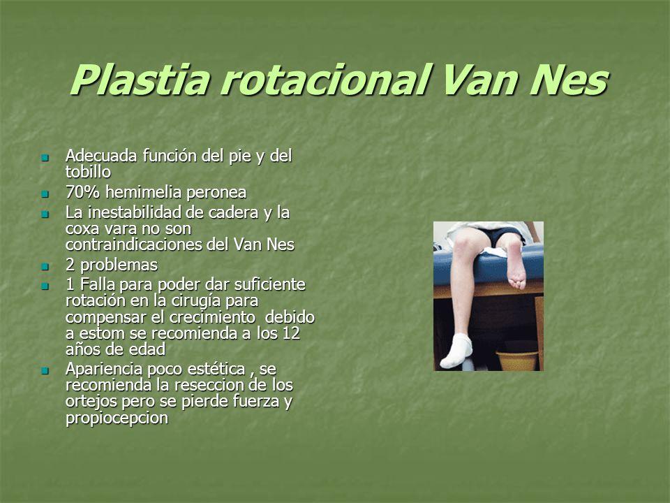 Plastia rotacional Van Nes Adecuada función del pie y del tobillo Adecuada función del pie y del tobillo 70% hemimelia peronea 70% hemimelia peronea L