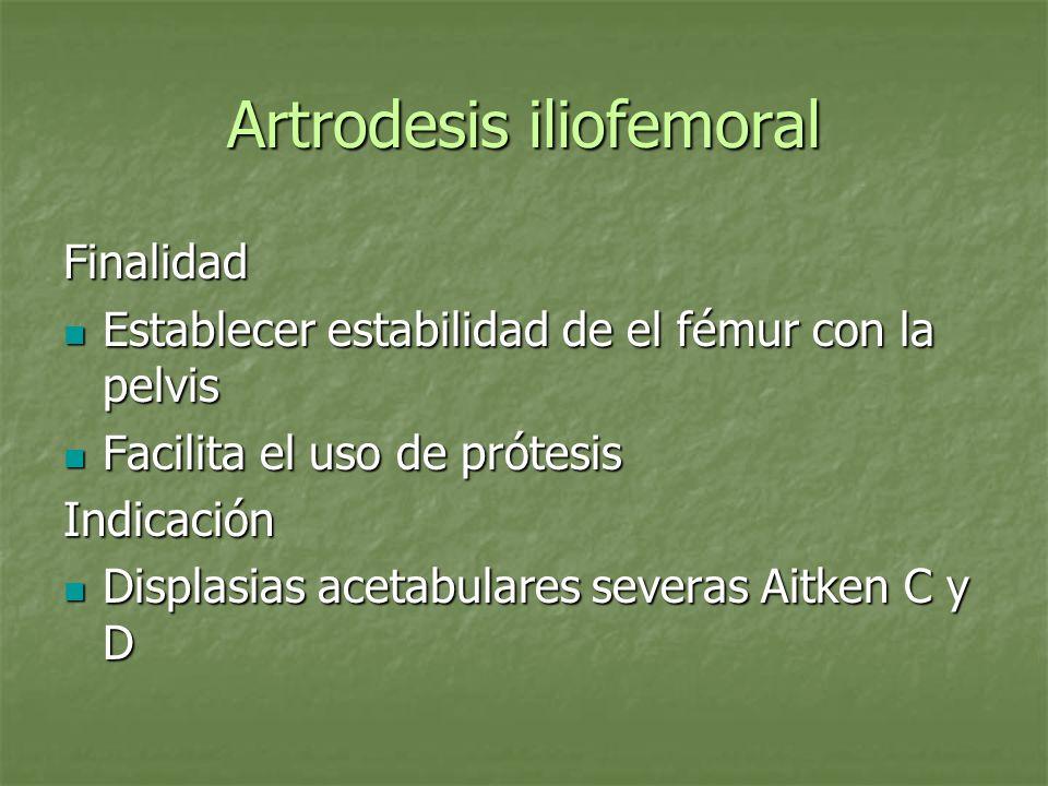 Artrodesis iliofemoral Finalidad Establecer estabilidad de el fémur con la pelvis Establecer estabilidad de el fémur con la pelvis Facilita el uso de