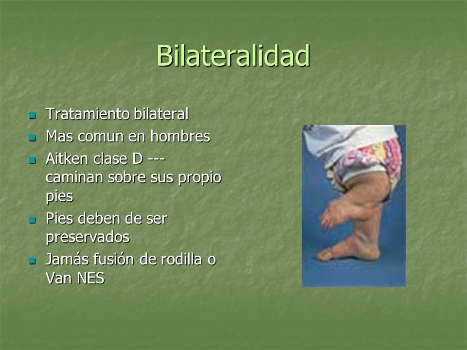 Bilateralidad Tratamiento bilateral Tratamiento bilateral Mas comun en hombres Mas comun en hombres Aitken clase D --- caminan sobre sus propio pies A