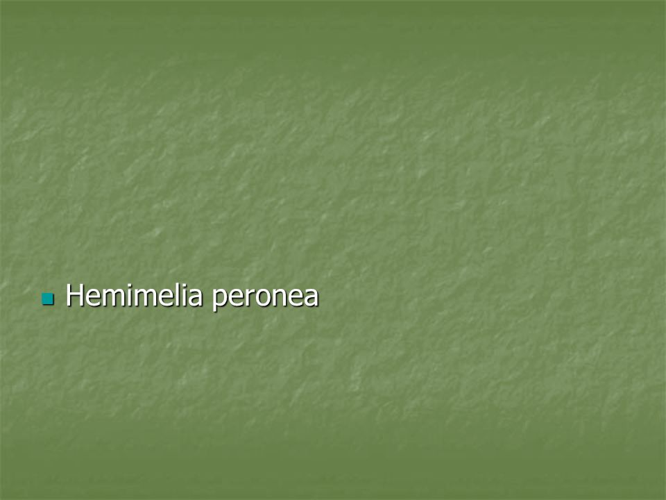 Introduccion La hemimelia perone descrita inicalmente como una condicion relacionada a la hipoplasia o aplasia del perone La hemimelia perone descrita inicalmente como una condicion relacionada a la hipoplasia o aplasia del perone Johnson, Achterman y Kalamchi fueron los pioneroos de la descripcion, actual clasificacion y tratamiento.