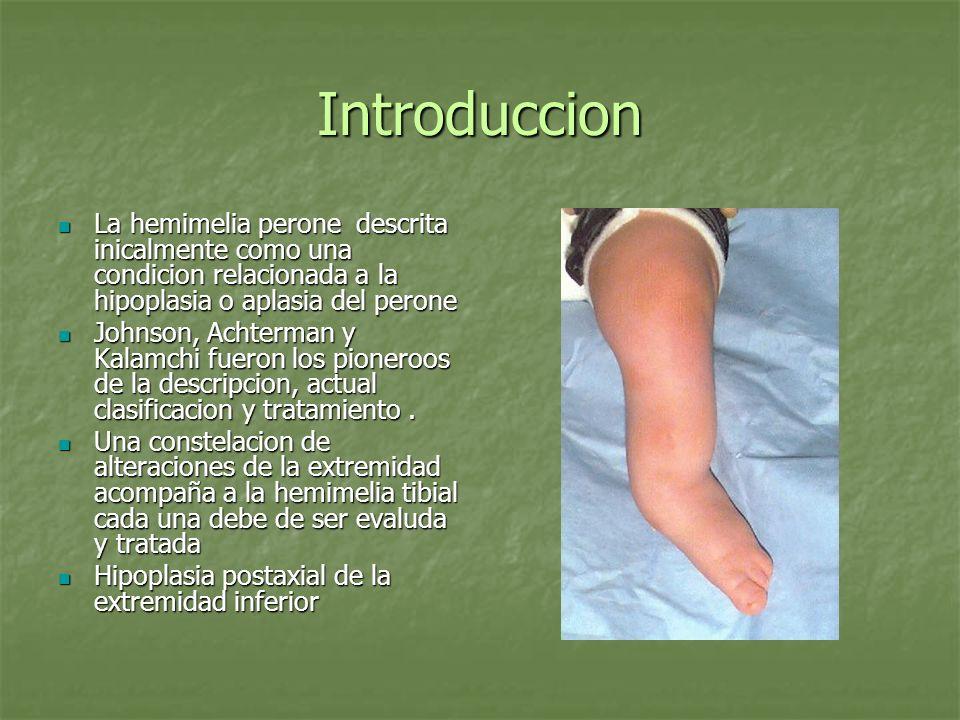Introduccion La hemimelia perone descrita inicalmente como una condicion relacionada a la hipoplasia o aplasia del perone La hemimelia perone descrita