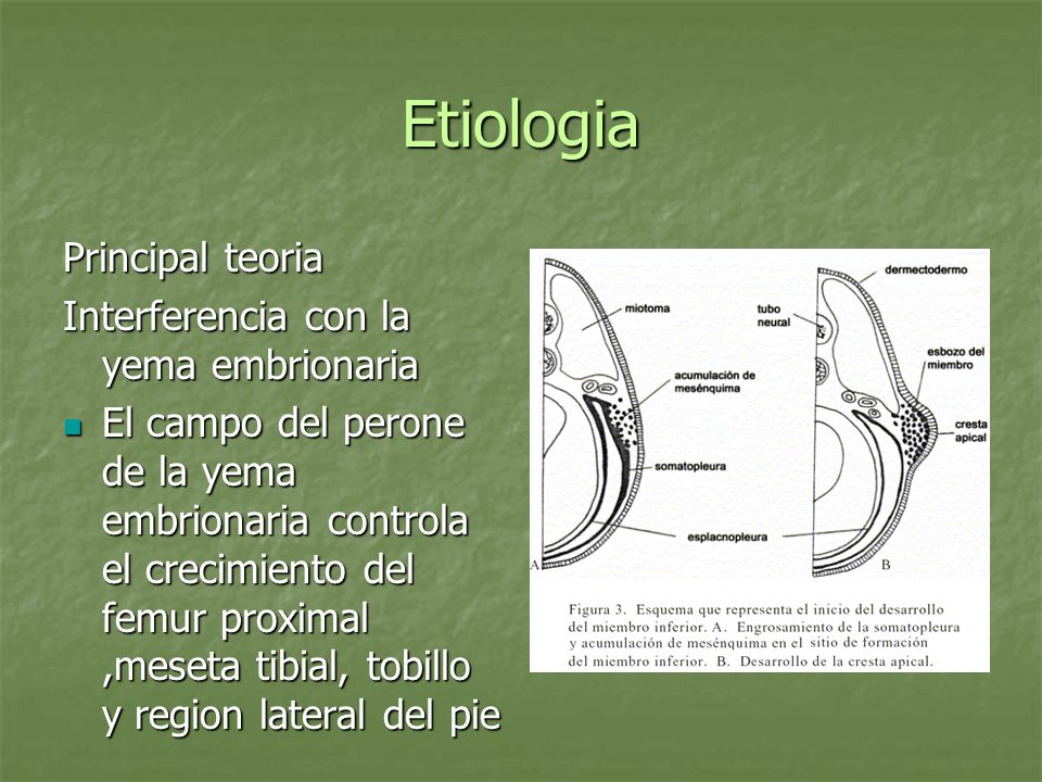 Etiologia Principal teoria Interferencia con la yema embrionaria El campo del perone de la yema embrionaria controla el crecimiento del femur proximal