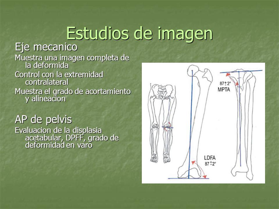 Estudios de imagen Eje mecanico Muestra una imagen completa de la deformida Control con la extremidad contralateral Muestra el grado de acortamiento y