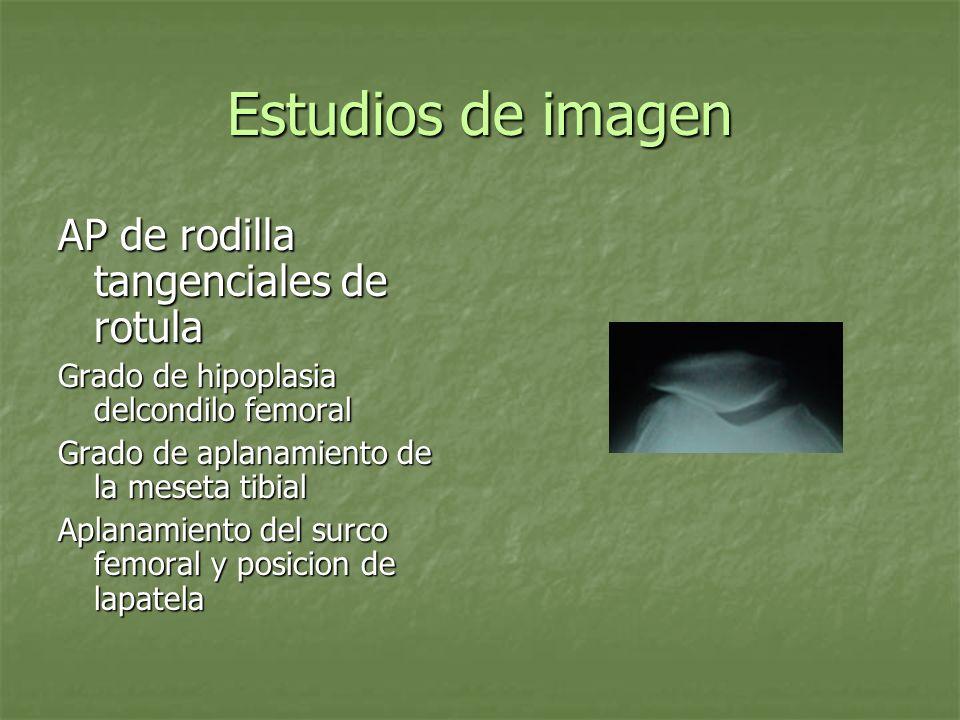 Estudios de imagen AP de rodilla tangenciales de rotula Grado de hipoplasia delcondilo femoral Grado de aplanamiento de la meseta tibial Aplanamiento