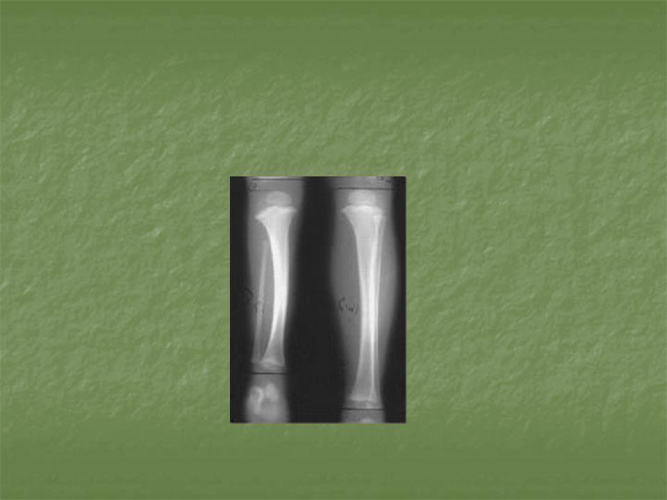 Estudios de imagen Las series de tobillo permiten determinar la morfologia del tobillo y la aportacion del perone a la mortaja, morfologia de tibia distal, el grado de valgo del tobillo Las series de tobillo permiten determinar la morfologia del tobillo y la aportacion del perone a la mortaja, morfologia de tibia distal, el grado de valgo del tobillo