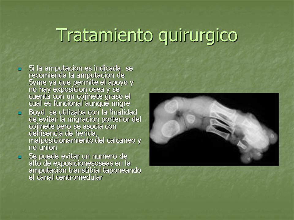 Tratamiento quirurgico Si la amputacion es indicada se recomienda la amputacion de Syme ya que permite el apoyo y no hay exposicion osea y se cuenta c