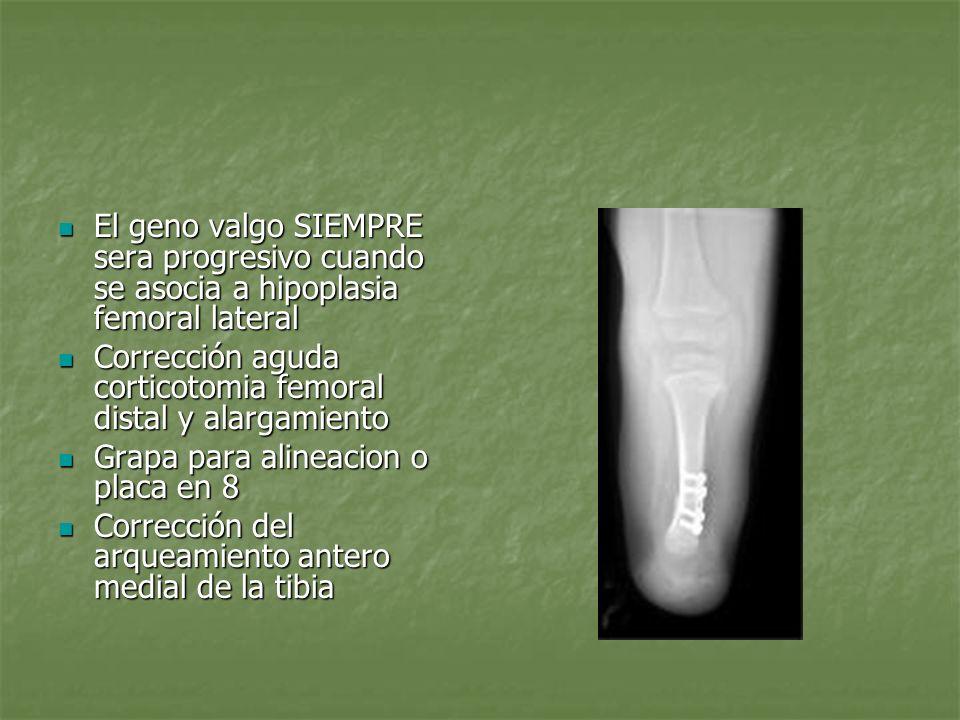 Tratamiento qururgico Tobillo valgo En deformidades severas Gruca En deformidades severas Gruca Casos leves de hipoplasia femoral osteotomia supramaleolar o una epifisiodesis maleolar medial con tobillo Casos leves de hipoplasia femoral osteotomia supramaleolar o una epifisiodesis maleolar medial con tobillo