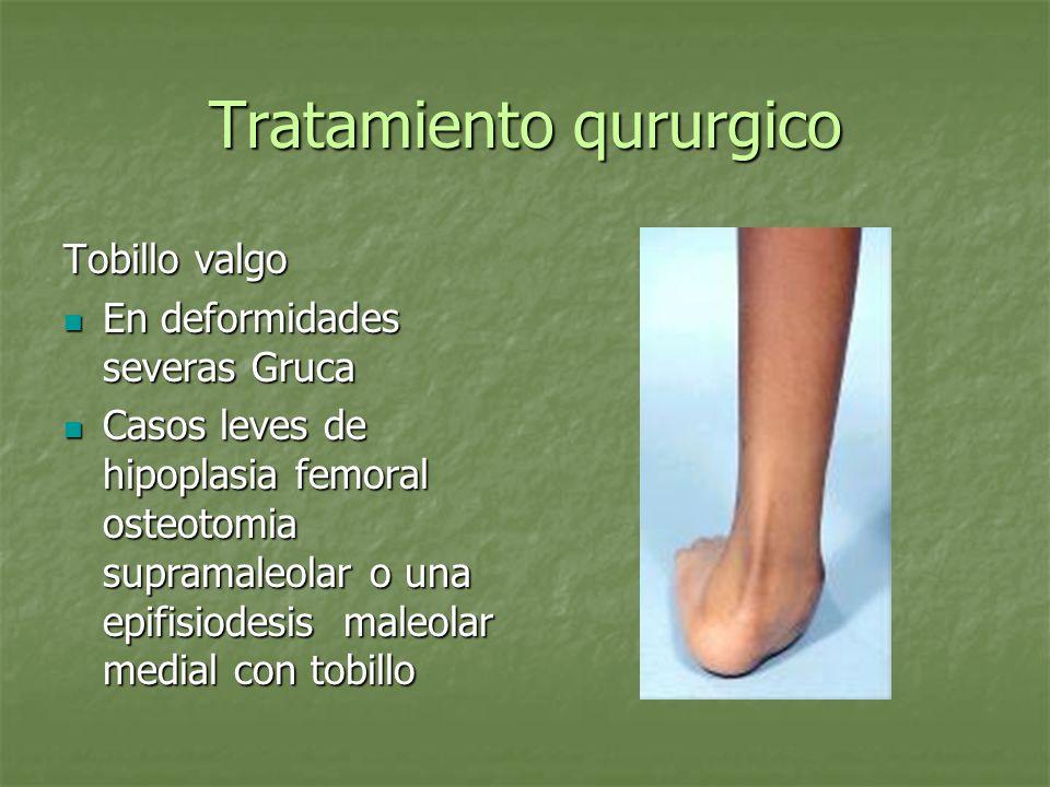 Tratamiento qururgico Tobillo valgo En deformidades severas Gruca En deformidades severas Gruca Casos leves de hipoplasia femoral osteotomia supramale