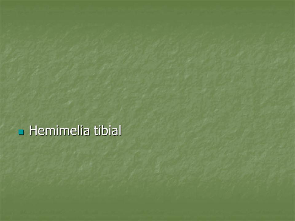 Introduccion La hemimelia tibial es relativamente rara La hemimelia tibial es relativamente rara Incluye un mosaicismo de alteraciones morfologicas de la region tibial de la yema embrionaria y sistemicas Incluye un mosaicismo de alteraciones morfologicas de la region tibial de la yema embrionaria y sistemicas Herencia: sindromes de herencia dominante o recesivos Herencia: sindromes de herencia dominante o recesivos
