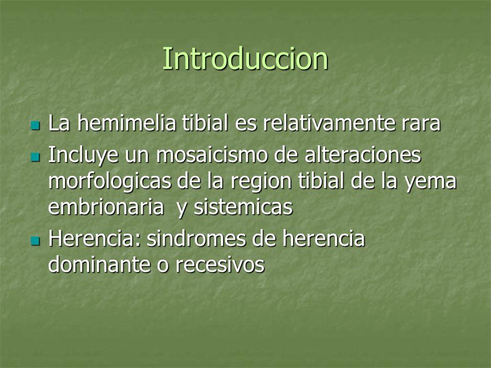 Introduccion La hemimelia tibial es relativamente rara La hemimelia tibial es relativamente rara Incluye un mosaicismo de alteraciones morfologicas de