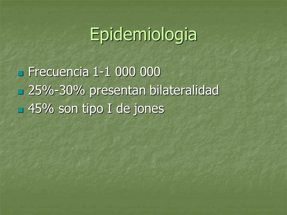 Epidemiologia Frecuencia 1-1 000 000 Frecuencia 1-1 000 000 25%-30% presentan bilateralidad 25%-30% presentan bilateralidad 45% son tipo I de jones 45
