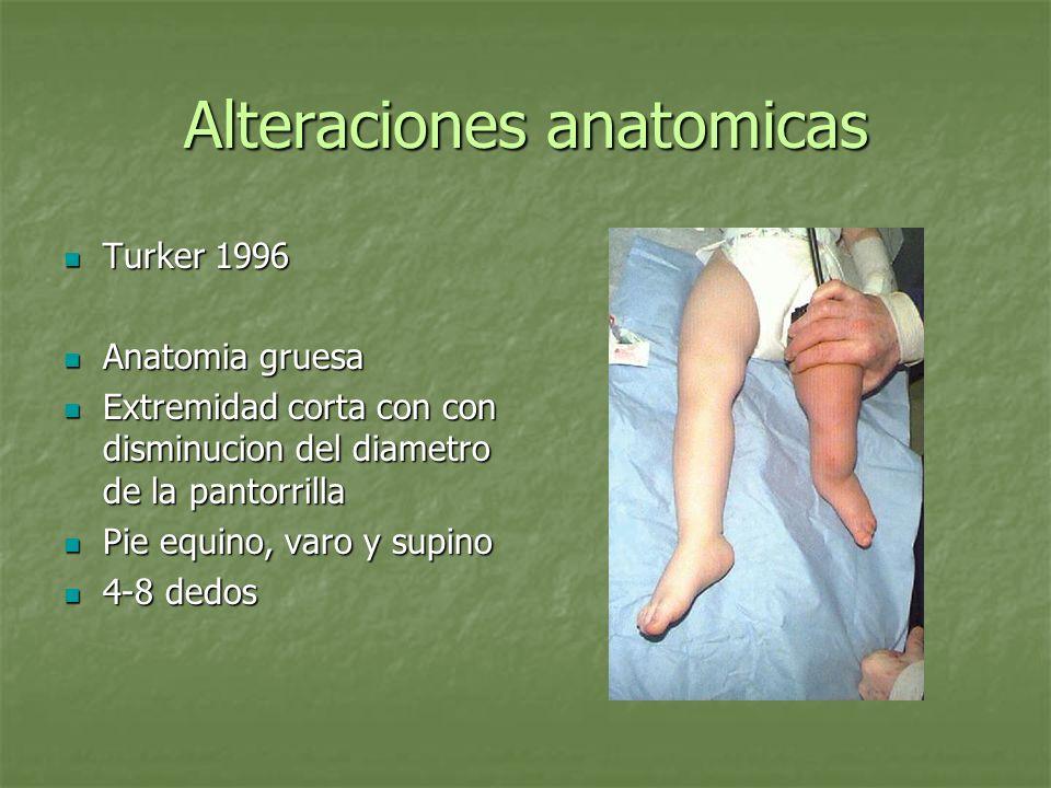 Alteraciones anatomicas Turker 1996 Turker 1996 Anatomia gruesa Anatomia gruesa Extremidad corta con con disminucion del diametro de la pantorrilla Ex