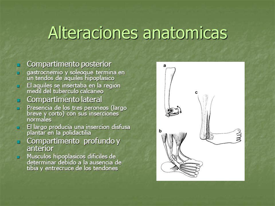 Alteraciones anatomicas Compartimento posterior Compartimento posterior gastrocnemio y soleoque termina en un tendos de aquiles hipoplasico gastrocnem