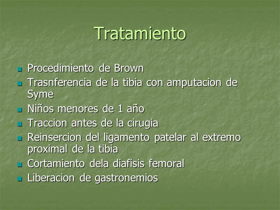 Tratamiento Procedimiento de Brown Procedimiento de Brown Trasnferencia de la tibia con amputacion de Syme Trasnferencia de la tibia con amputacion de