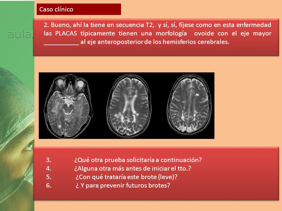 Empareje los cuadros clínicos de TCE con los estudios de neuroimagen de la siguientes diapositivas (A,B,C,D,E,F) y proponga un diagnóstico en cada caso Varón, 21, accidente de moto con pérdida de consciencia de dcha.+ hemiparesia dcha.
