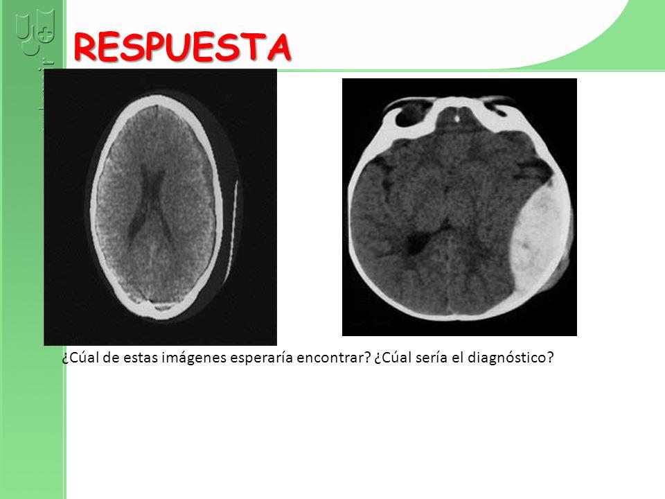 Diagnóstico: Hematoma subdural Estas dos imágenes de TAC craneal muestran dos posibles complicaciones en este caso.