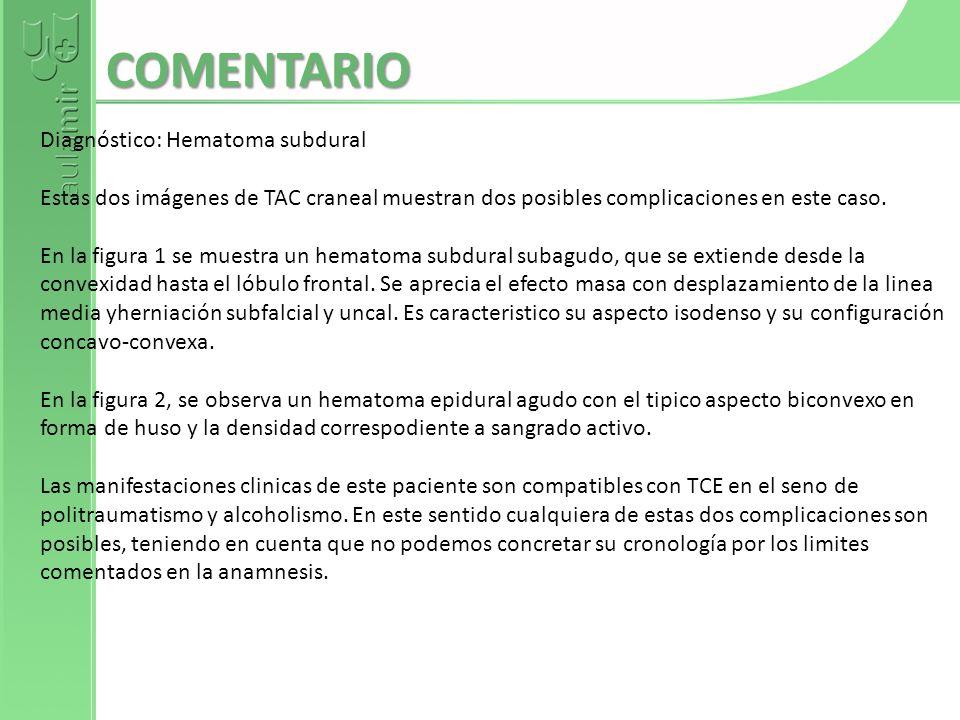 ATAXIA + PARKINSONISMO + HISTORIA FAMILIAR RESPUESTA CARDIOPATÍA + ARTRITIS + COREA RESPUESTA TICS + ALTERACIONES DE CONDUCTA + COPROPRAXIA + COPROLALIA RESPUESTA PARKINSONISMO + HIPOTENSIÓN ORTOSTÁTICA + ANHIDROSIS RESPUESTA TAUOPATÍA + DEMENCIA + RIGIDEZ + DISTONÍA + MANO ALIENÍGENA RESPUESTA DEMENCIA + COREA + HISTORIA FAMILIAR RESPUESTA EPILEPSIA MIOCLÓNICA + ANTECEDENTES FAMILIARES RESPUESTA TEMBLOR + RIGIDEZ + BRADICINESIA RESPUESTA DEMENCIA + PARKINSONISMO + CAÍDAS +DIPLOPIA MIRADA VERTICAL RESPUESTA EXTRAPIRAMIDALES