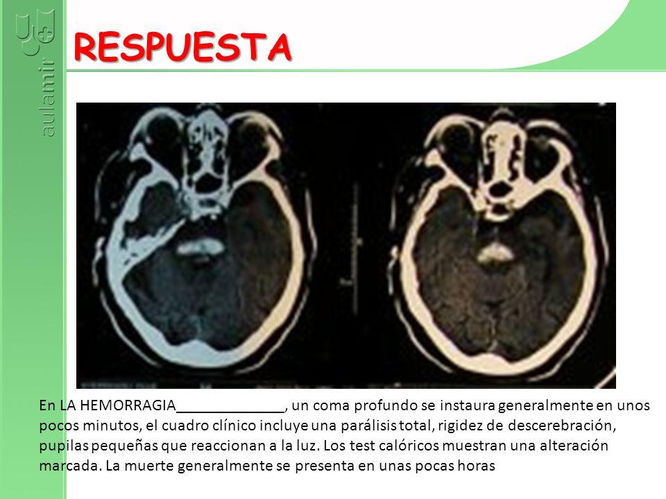 DEMENCIA + ATAXIA + MIOCLONÍAS RESPUESTA CEFALEA + FIEBRE + FOCALIDAD + PAPILEDEMA RESPUESTA FIEBRE + VÓMITOS + OBNUBILACIÓN + ALUCINACIONES AUDITIVAS RESPUESTA MENINGITIS + UVEÍTIS + DEPIGMENTACIÓN + SORDERA RESPUESTA MENINGITIS + ÚLCERAS ORALES DOLOROSAS + ÚLCERAS GENITALES RESPUESTA CEFALEA SUBAGUDA + PAPILEDEMA + HEMIPLEJÍA + KERNIG (+) RESPUESTA MENINGITIS LINFOCITARIA CON OFTALMOPLEJÍA RESPUESTA MENINGITIS EN TRATADO DE HIDROCEFALIA NORMOTENSIVA RESPUESTA CONVULSIONES + AFASIA EN PACIENTE CON INFECCIÓN VIH RESPUESTA INFECCIONES