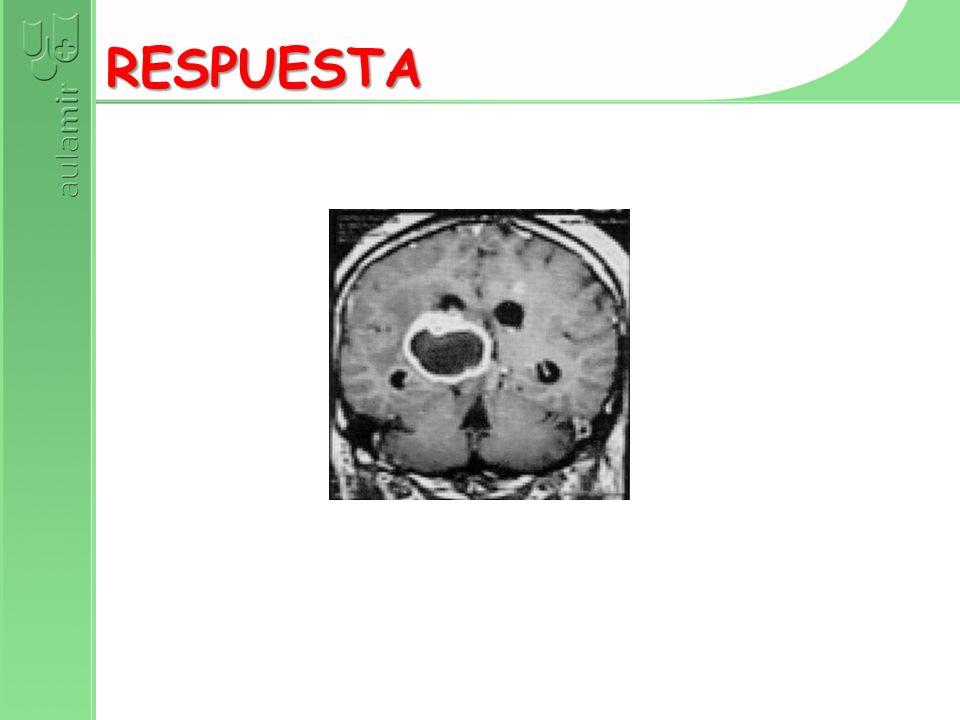 EN PIERNAS + BABINSKI + NEURITIS ÓPTICA + DIPLOPIA + ATAXIA + …EN BROTES RESPUESTA EN BRAZOS CON HIPORREFLEXIA Y QUEMADURAS EN BRAZOS RESPUESTA EN UNA PIERNA CON BABINSKI + UN BRAZO CON ARREFLEXIA + SEUDOBULBARISMO RESPUESTA EN PIERNAS + HIPORREFLEXIA + ANTECEDENTE DE GASTROENTERITIS RESPUESTA CON ATROFIA Y ARREFLEXIA GENERALIZADA EN LACTANTE RESPUESTA EN PIERNAS CON BABINSKI Y NIVEL SENSITIVO EN PACIENTE VIH RESPUESTA DIPLOPIA QUE EMPEORA POR LA NOCHE RESPUESTA OFTALMOPLEJÍA + ATAXIA + CONFUSIÓN + NISTAGMO RESPUESTA PARÁLISIS FACIAL DERECHA Y HEMIPLEJÍA DERECHA RESPUESTA PARESIAS VARIAS